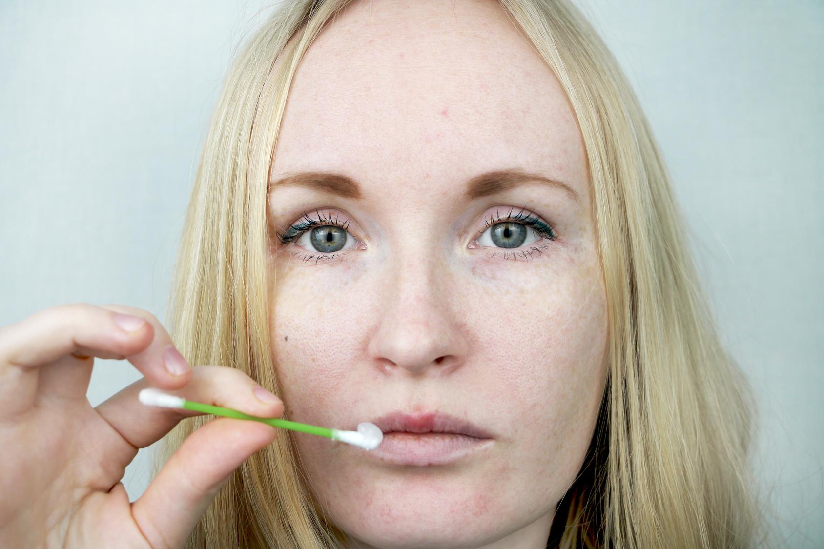 Jak zapobiegać powstawaniu opryszczki wargowej?